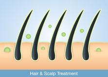 Deep treatment into hair and scalp. Active ingredient treatment deep into hair and scalp Royalty Free Stock Photo