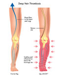 Deep vein thrombosis vector illustration