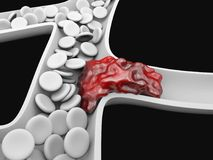 Deep Vein Thrombosis or Blood Clots. Embolism. Deep Vein Thrombosis or Blood Clots. Embolism royalty free illustration