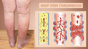 Deep Vein Thrombosis or Blood Clots. Embolus. Structure of normal and varicose male veins stock photo