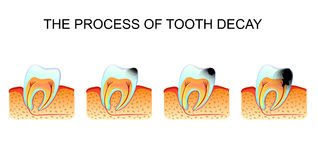 The defeat of teeth caries Stock Images