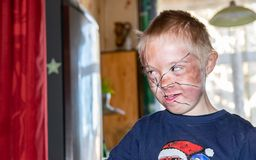 Defect,childcare,medicine and people concept. Happy boy with down syndrome, prepared and painted for home theater royalty free stock photos