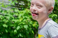 Defect,childcare,medicine and people concept. Happy and smiling boy with down syndrome while playing in the garden stock photography