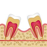Defect of the missing tooth and the need to install an implant. Vector illustration used for booklets, flyers, banners of dental clinics stock illustration