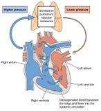 Defectos del corazón que causan el síndrome de Eisenmenger Fotografía de archivo
