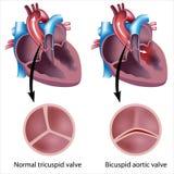 Defeito de válvula do coração Fotografia de Stock Royalty Free