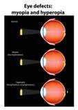 Defeitos do olho: myopia e hyperopia Foto de Stock Royalty Free