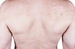 Defeitos em problemas de peles da acne do macho adulto, prurido Fotografia de Stock