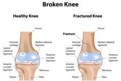 Defekter Knie-Bruch vektor abbildung