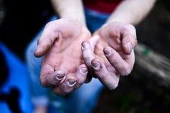 Defektes Magnesium und gebrochener Arm des Bergsteigers Stockbild