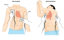 Defibrillator cardioversion. Placement of defibrillator electrode paddles to perform cardioversion on a patient with cardiac arrhythmia. Created in Adobe Royalty Free Stock Photography