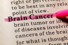 Definitie van Brain Cancer Royalty-vrije Stock Afbeelding