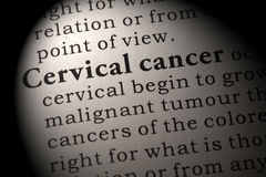 Definition of  cervical cancer Stock Photos