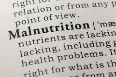Definition of malnutrition stock photos