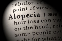 Definizione dell'alopecia Fotografie Stock