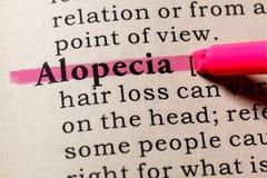 Definizione dell'alopecia Immagini Stock Libere da Diritti