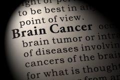 Definizione di Brain Cancer Fotografie Stock