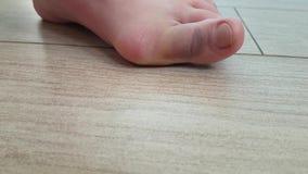 Deformação da junção na artrite anormal do dedo do pé filme