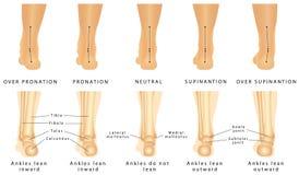 Deformación del pie Imagen de archivo