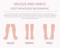 Deformación del pie como desease médico infographic Valgus y varu ilustración del vector