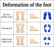 Deformacja stopa ilustracja wektor