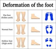 Deformation of the foot. Illustration of the deformation of the foot - flat feet and a hollow foot. There are footprints, the form of the foot on the side and vector illustration