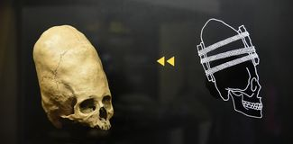 Deformed Ancient Peruvian Skull. Ancient Peruvian deformed skull. Common discovery in Peruvian tombs. Shown also signs of skull surgery, trepanation royalty free stock photos