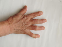 Deformed fingers on the hand of an old woman Stock Photos