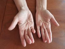 Deformed hands royalty free stock image