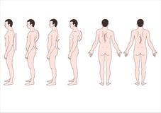 Deformering av ryggen royaltyfri illustrationer