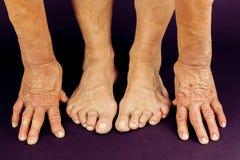 Deformidades de la mano y del dedo del pie de la artritis de Rrheumatoid Fotos de archivo