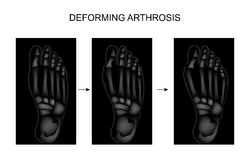 Deforming arthrosis of the foot Stock Photo