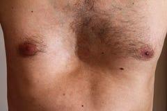 Deformità del petto, difetto di nascita Forte deformità excavatus di pectus immagine stock libera da diritti