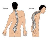 Deformità spinali Fotografia Stock