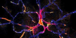 Degeneratie van dopaminergic neuron, een zeer belangrijk stadium van ontwikkeling van de ziekte van Parkinson ` s vector illustratie