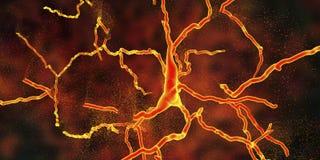 Degeneration des dopaminergischen Neurons, ein Schlüsselstadium der Entwicklung von Parkinson-` s Krankheit lizenzfreie abbildung
