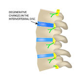 Degenerative changes in the intervertebral disc. Vector illustration on isolated background Stock Photo