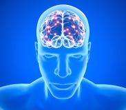Degenerative sjukdomar för hjärna, Parkinson, synapses, neurons, Alzheimer ` s, tolkning 3d royaltyfri illustrationer