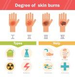 Degré de brûlures de peau Vecteur Images libres de droits