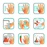 Degree burns set, burns treatment and classification vector Illustrations. On a white background Stock Photos