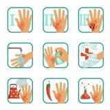 Degree burns set, burns treatment and classification vector Illustrations Stock Photos