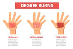 Degree burns of skin. Infographic. Vector illustration Royalty Free Stock Images