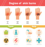 Degree of skin burns. Vector. Cartoon. Isolated. Flat. Illustration for websites brochures magazines Royalty Free Stock Images