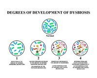 4 degrees of development of dysbiosis. Dysbacteriosis of the intestine. large intestine. dysbiosis colon. Bacteria, fungi, viruses. 4 degrees of development of Royalty Free Stock Photo