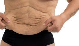 Dehnungsstreifen eines Mannes nach Gewichtsverlust stockbilder