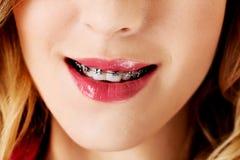 Del cierre boca abierta para arriba con los apoyos en los dientes Foto de archivo