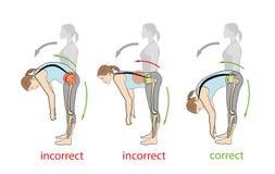Delantero inclinable correcto e incorrecto recomendaciones médicas Problemas del dolor de espalda Ilustración del vector libre illustration