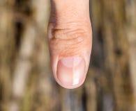 Delat spika på tummen Utvidgning av spika, traumatisk patologi Spika delas i halva fotografering för bildbyråer