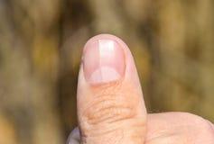 Delat spika på tummen Utvidgning av spika, traumatisk patologi Spika delas i halva royaltyfri bild