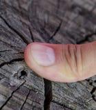 Delat spika på tummen Utvidgning av spika, traumatisk patologi Spika delas i halva royaltyfri fotografi